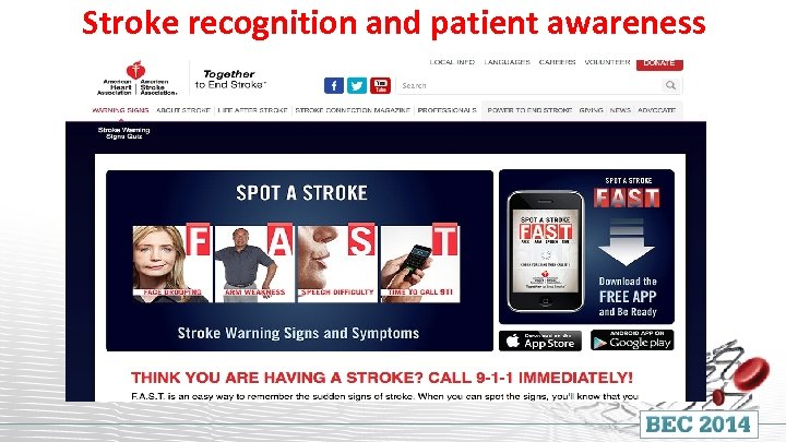 Stroke recognition and patient awareness