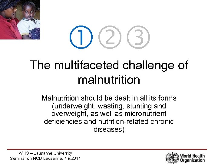 The multifaceted challenge of malnutrition Malnutrition should be dealt in all its forms