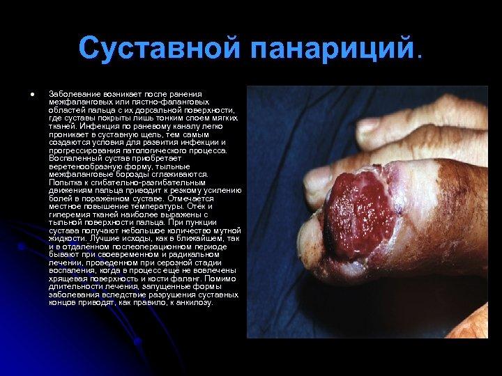 Суставной панариций. l Заболевание возникает после ранения межфаланговых или пястно-фаланговых областей пальца с их