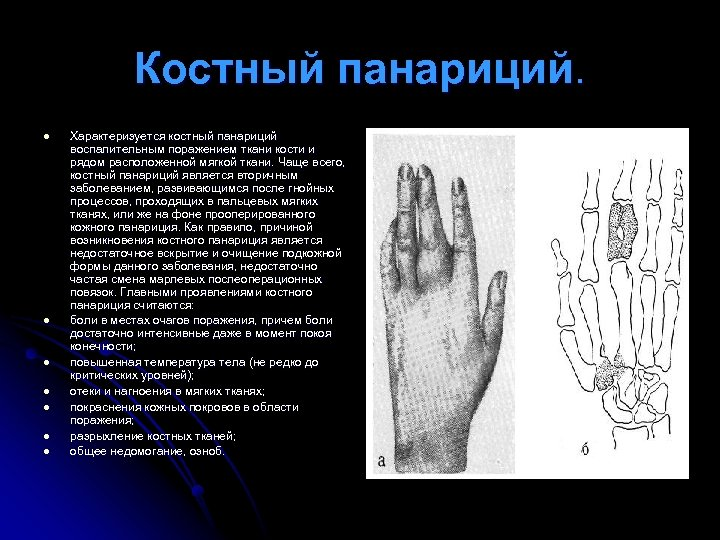 Костный панариций. l l l l Характеризуется костный панариций воспалительным поражением ткани кости и