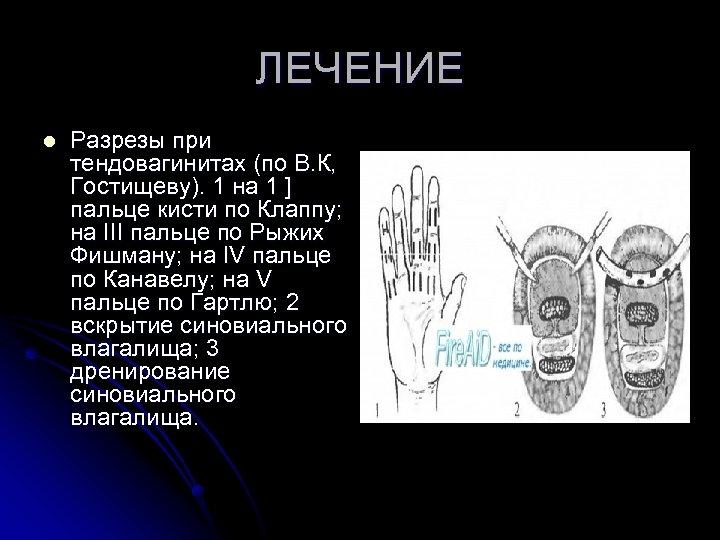 ЛЕЧЕНИЕ l Разрезы при тендовагинитах (по В. К, Гостищеву). 1 на 1 ] пальце