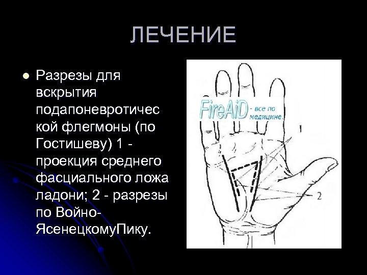 ЛЕЧЕНИЕ l Разрезы для вскрытия подапоневротичес кой флегмоны (по Гостишеву) 1 - проекция среднего