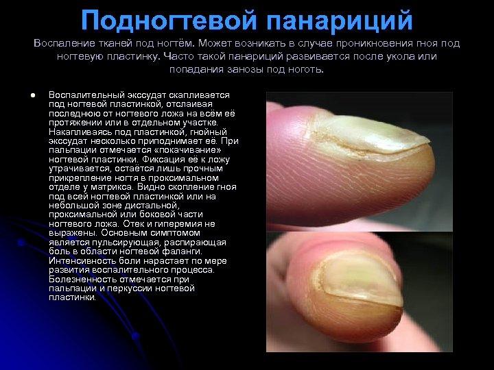 Подногтевой панариций Воспаление тканей под ногтём. Может возникать в случае проникновения гноя под ногтевую
