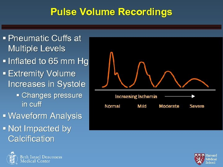 Pulse Volume Recordings § Pneumatic Cuffs at Multiple Levels § Inflated to 65 mm