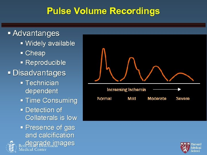 Pulse Volume Recordings § Advantanges § Widely available § Cheap § Reproducible § Disadvantages