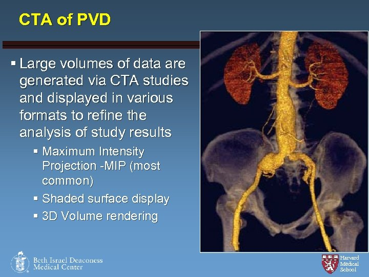 CTA of PVD § Large volumes of data are generated via CTA studies and