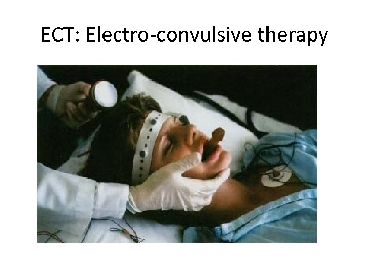 ECT: Electro-convulsive therapy