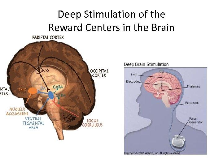 Deep Stimulation of the Reward Centers in the Brain