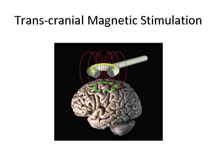 Trans-cranial Magnetic Stimulation