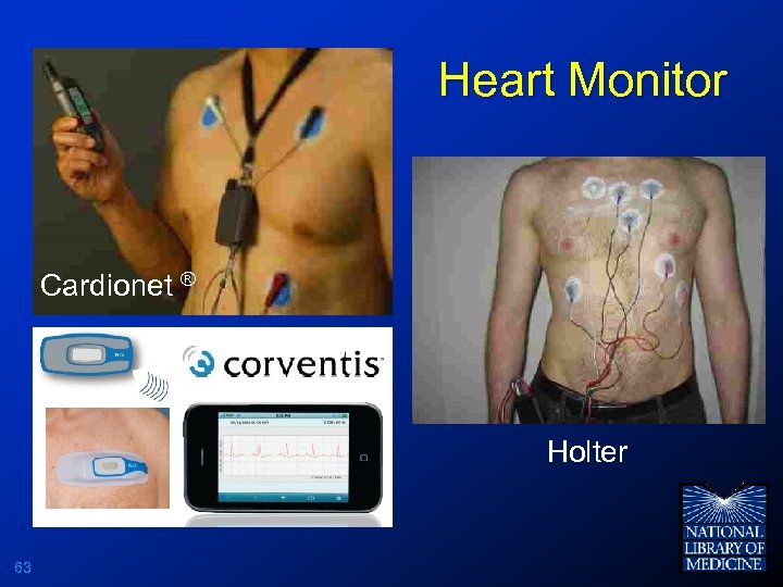 Heart Monitor Cardionet ® Holter 63