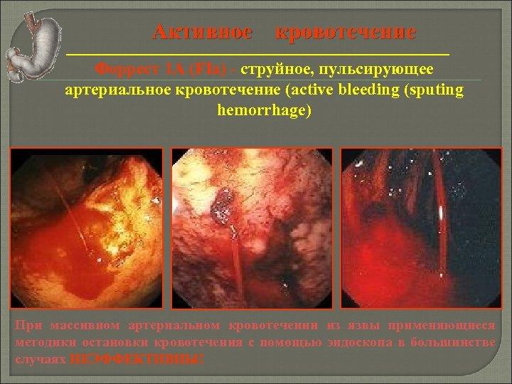 Активное кровотечение Форрест 1 А (FIa) - струйное, пульсирующее артериальное кровотечение (active bleeding (sputing