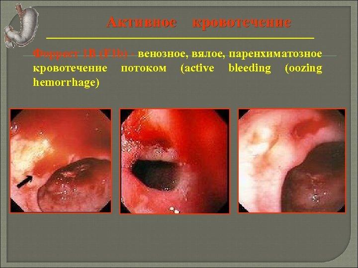 Активное кровотечение Форрест 1 В (F 1 b) - венозное, вялое, паренхиматозное кровотечение потоком