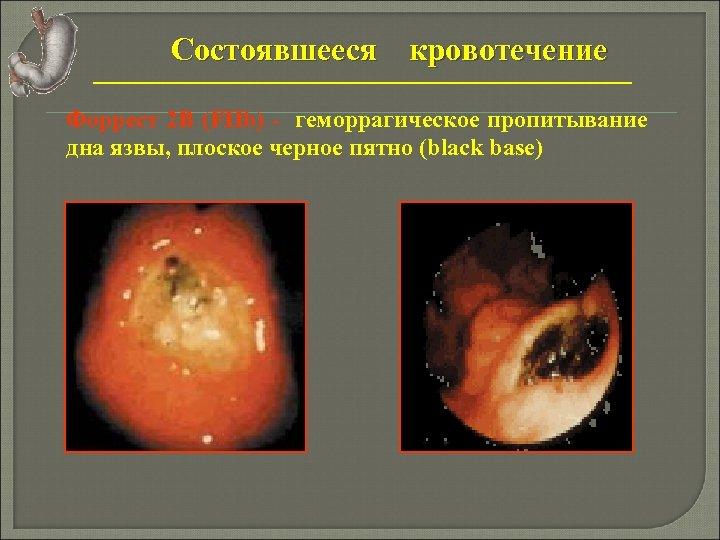Состоявшееся кровотечение Форрест 2 В (FIIb) - геморрагическое пропитывание дна язвы, плоское черное пятно