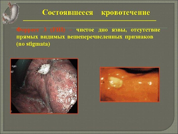 Состоявшееся кровотечение Форрест 3 (FIII) – чистое дно язвы, отсутствие прямых видимых вешеперечисленных признаков
