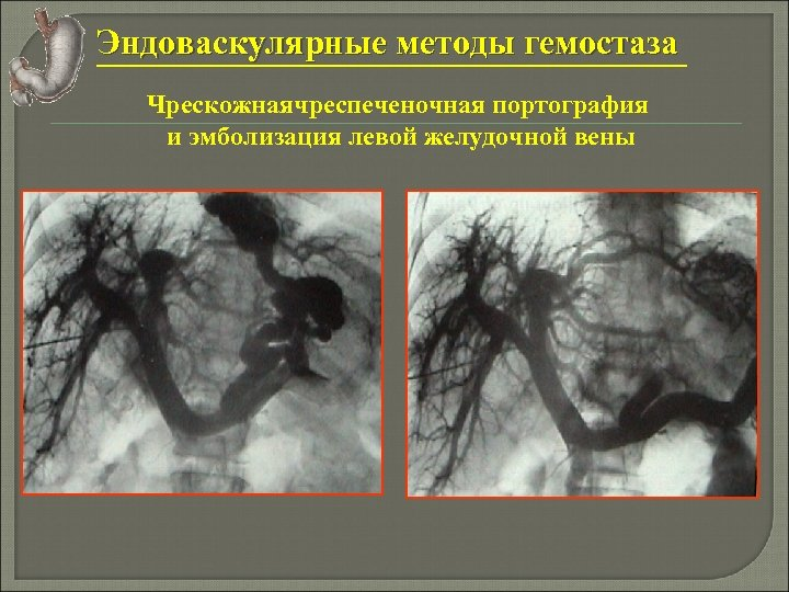 Эндоваскулярные методы гемостаза Чрескожнаячреспеченочная портография и эмболизация левой желудочной вены