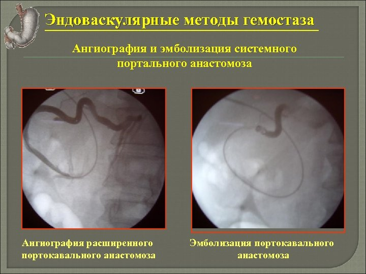 Эндоваскулярные методы гемостаза Ангиография и эмболизация системного портального анастомоза Ангиография расширенного портокавального анастомоза Эмболизация
