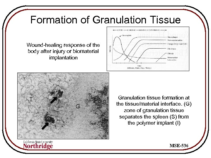 Formation of Granulation Tissue Wound-healing response of the body after injury or biomaterial implantation