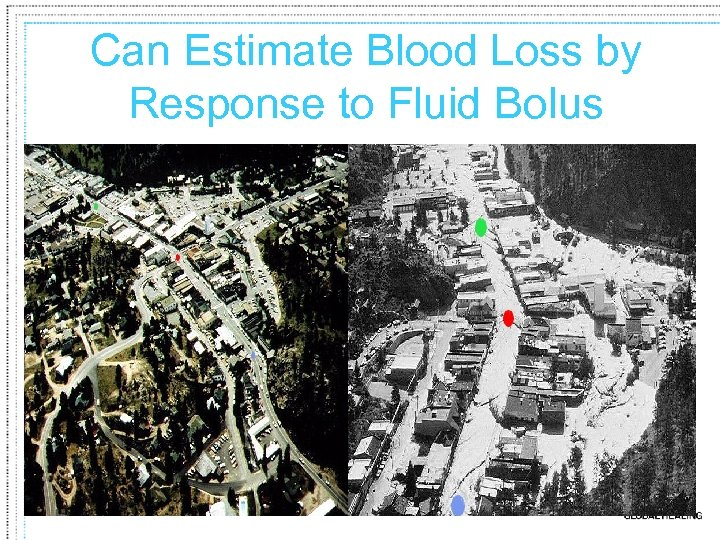 Can Estimate Blood Loss by Response to Fluid Bolus