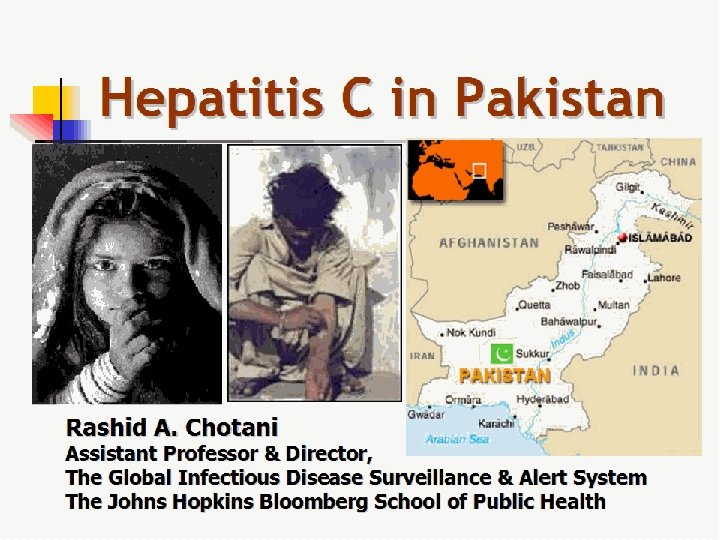 Hepatitis C in Pakistan Rashid A. Chotani Assistant Professor & Director, The Global Infectious