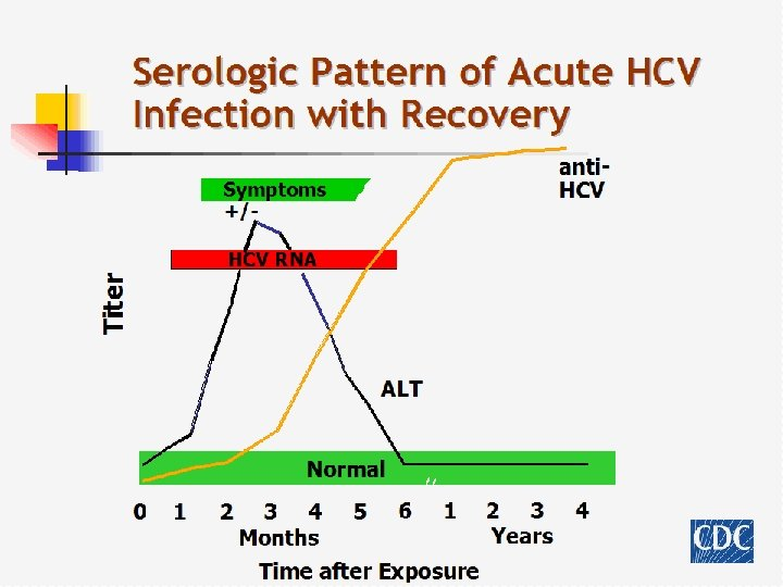 Serologic Pattern of Acute HCV Infection with Recovery anti. HCV Symptoms +/- Titer HCV