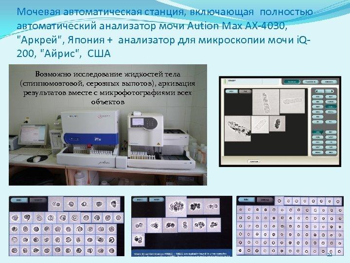 Мочевая автоматическая станция, включающая полностью автоматический анализатор мочи Aution Max АХ-4030,