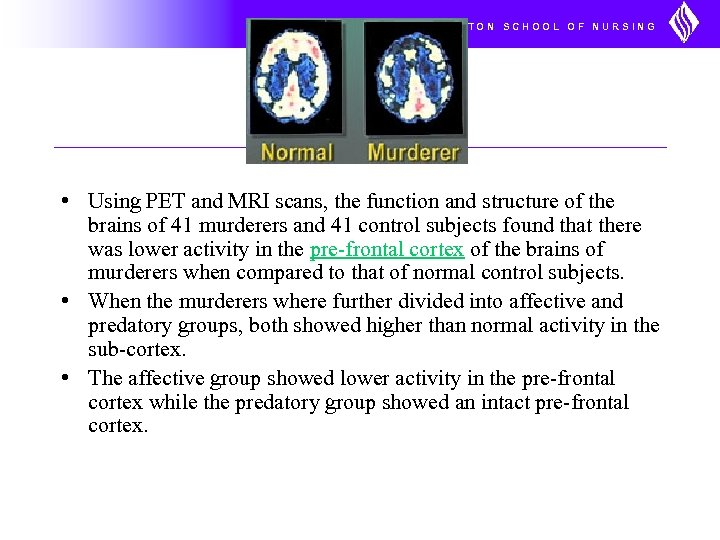 UNIVERSITY OF WASHINGTON SCHOOL OF NURSING • Using PET and MRI scans, the function