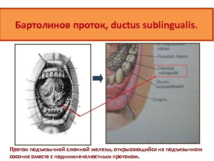 Бартолинов проток, ductus sublingualis. Проток подъязычной слюнной железы, открывающийся на подъязычном сосочке вместе