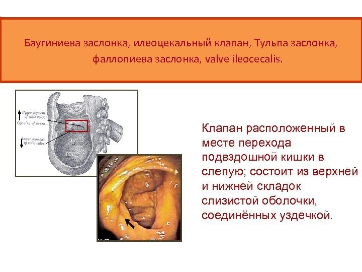 Баугиниева заслонка, илеоцекальный клапан, Тульпа заслонка, фаллопиева заслонка, valve ileocecalis. Клапан расположенный в месте