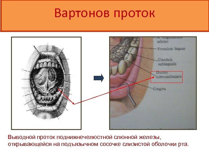 Вартонов проток Выводной проток поднижнечелюстной слюнной железы, открывающейся на подъязычном сосочке слизистой оболочки рта.