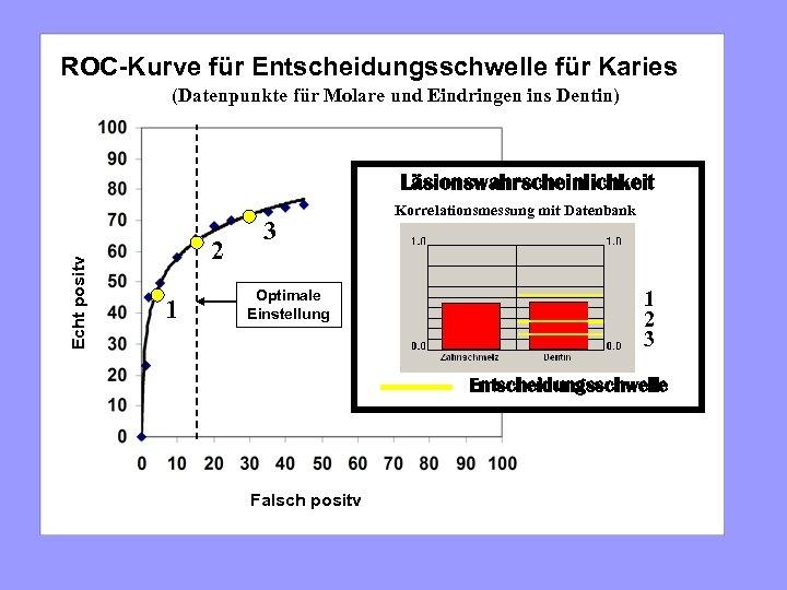ROC-Kurve für Entscheidungsschwelle für Karies (Datenpunkte für Molare und Eindringen ins Dentin) Echt positv