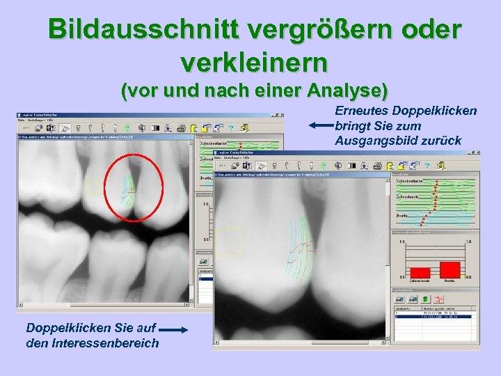 Bildausschnitt vergrößern oder verkleinern (vor und nach einer Analyse) Erneutes Doppelklicken bringt Sie zum