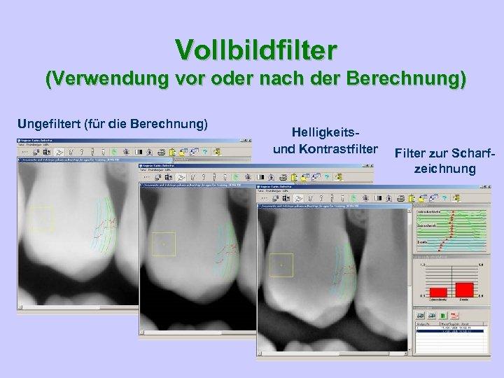 Vollbildfilter (Verwendung vor oder nach der Berechnung) Ungefiltert (für die Berechnung) Helligkeits- und Kontrastfilter