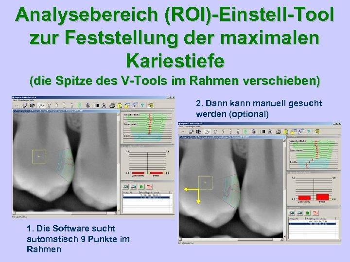 Analysebereich (ROI)-Einstell-Tool zur Feststellung der maximalen Kariestiefe (die Spitze des V-Tools im Rahmen verschieben)