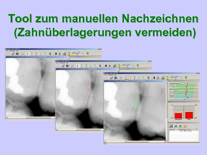 Tool zum manuellen Nachzeichnen (Zahnüberlagerungen vermeiden)