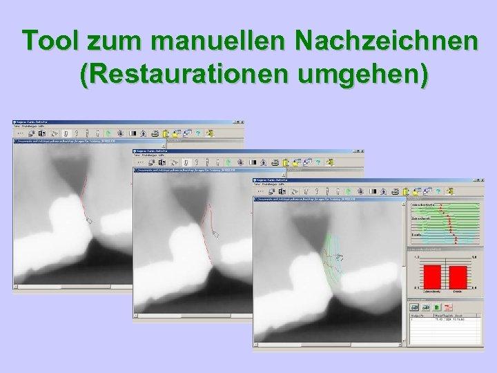 Tool zum manuellen Nachzeichnen (Restaurationen umgehen)