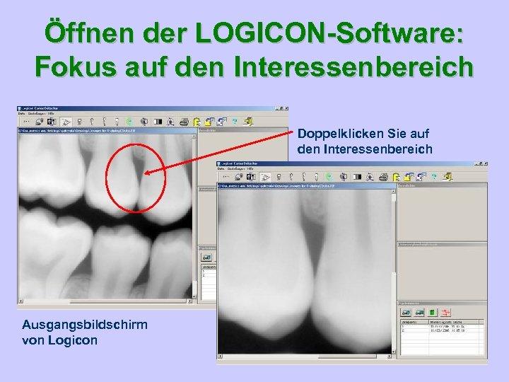 Öffnen der LOGICON-Software: Fokus auf den Interessenbereich Doppelklicken Sie auf den Interessenbereich Ausgangsbildschirm von