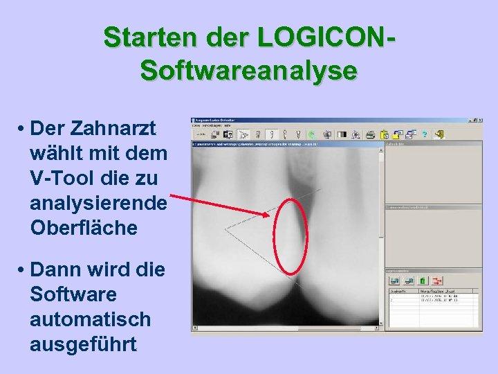 Starten der LOGICONSoftwareanalyse • Der Zahnarzt wählt mit dem V-Tool die zu analysierende Oberfläche