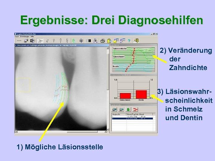 Ergebnisse: Drei Diagnosehilfen 2) Veränderung der Zahndichte 3) Läsionswahrscheinlichkeit in Schmelz und Dentin 1)