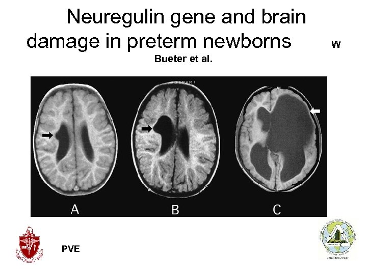 Neuregulin gene and brain damage in preterm newborns W Bueter et al. PVE