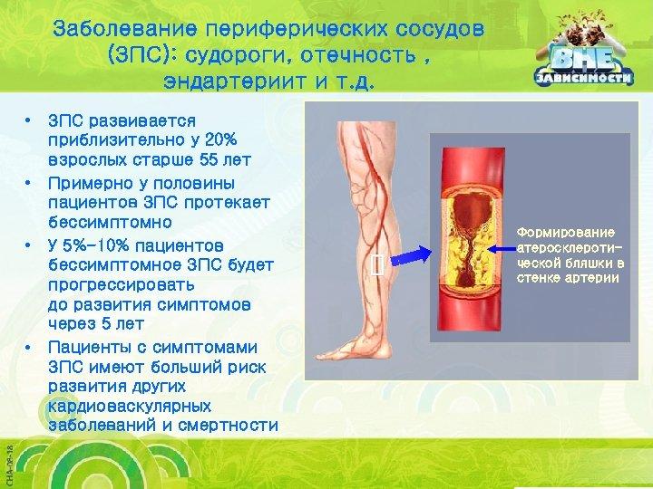 Заболевание периферических сосудов (ЗПС): судороги, отечность , эндартериит и т. д. • • ЗПС