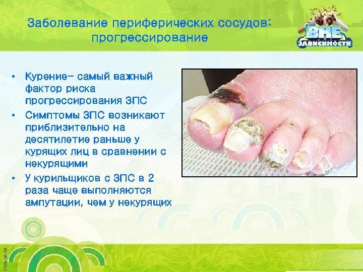 Заболевание периферических сосудов: прогрессирование • Курение- самый важный фактор риска прогрессирования ЗПС • Симптомы