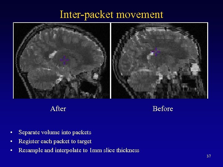 Inter-packet movement After Before • Separate volume into packets • Register each packet to