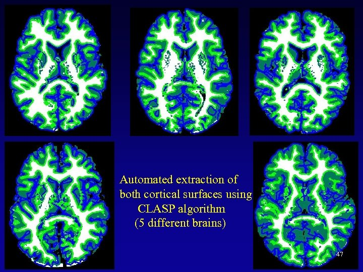 Automated extraction of both cortical surfaces using CLASP algorithm (5 different brains) 47