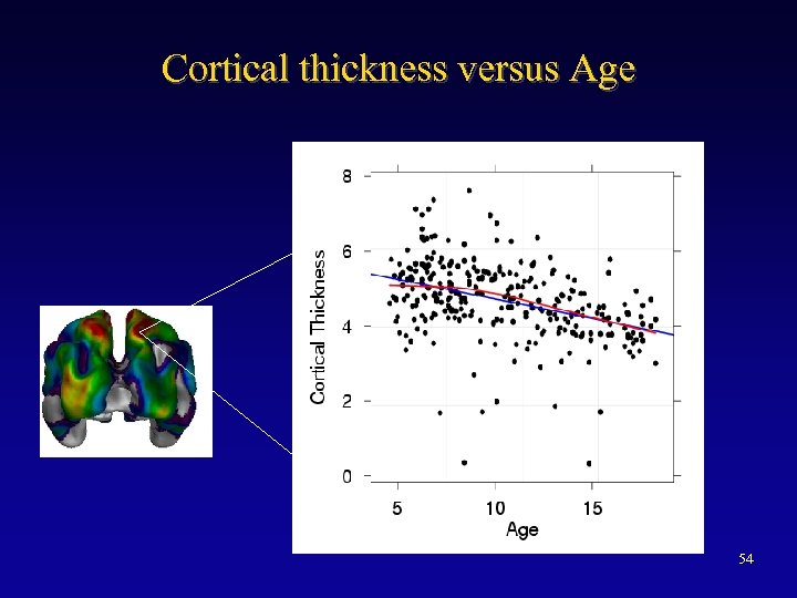 Cortical thickness versus Age 54
