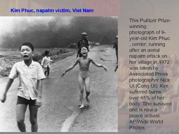 Kim Phuc, napalm victim, Viet Nam This Pulitzer Prizewinning photograph of 9 year-old Kim
