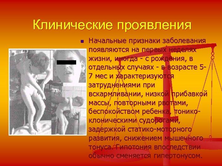 Клинические проявления n Начальные признаки заболевания появляются на первых неделях жизни, иногда - с