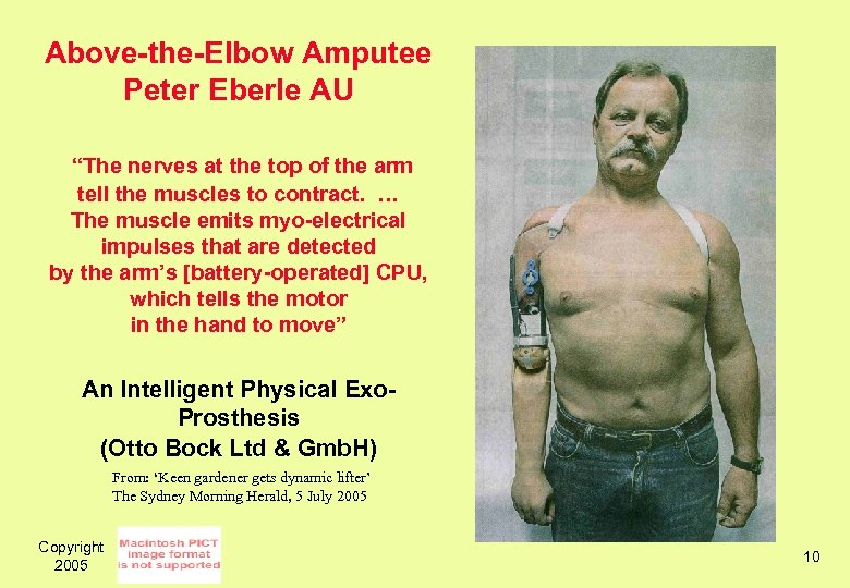 """Above-the-Elbow Amputee Peter Eberle AU """"The nerves at the top of the arm tell"""