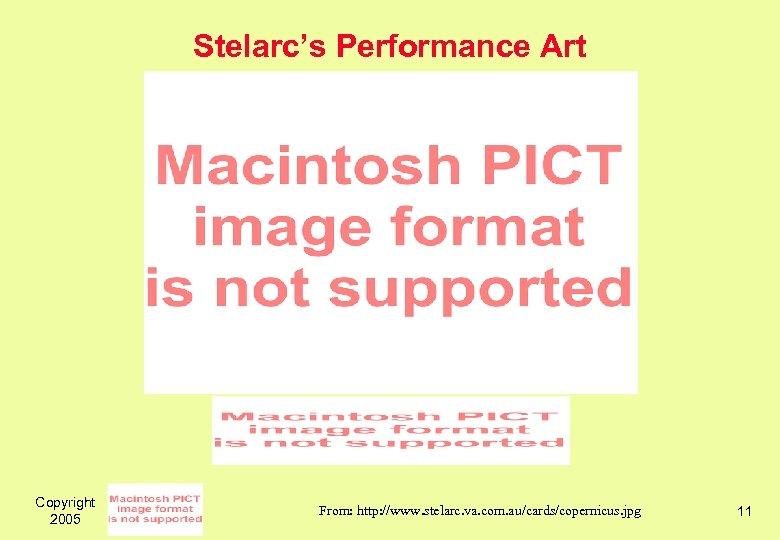 Stelarc's Performance Art Copyright 2005 From: http: //www. stelarc. va. com. au/cards/copernicus. jpg 11