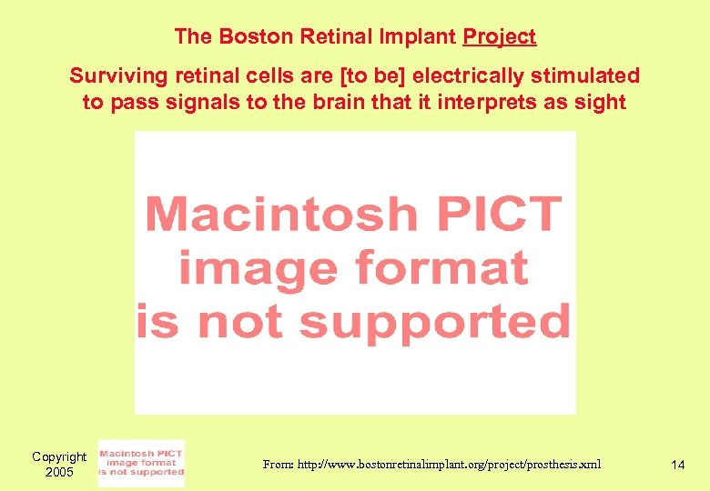 The Boston Retinal Implant Project Surviving retinal cells are [to be] electrically stimulated to