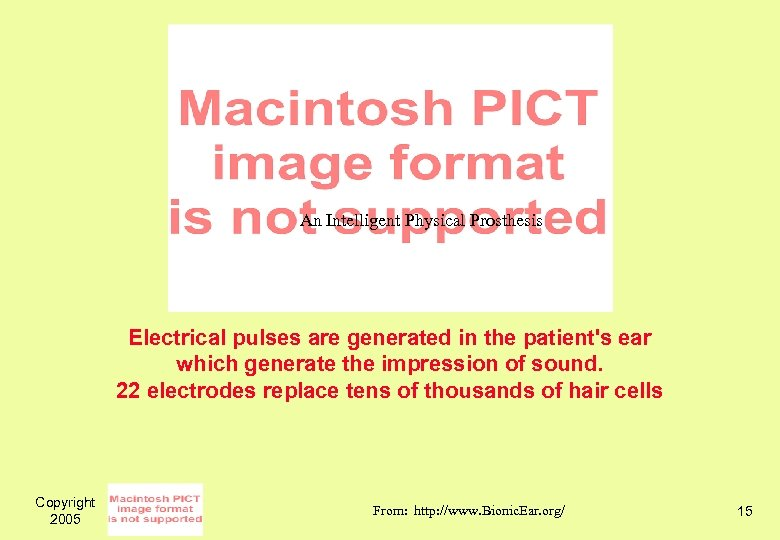 An Intelligent Physical Prosthesis Electrical pulses are generated in the patient's ear which generate
